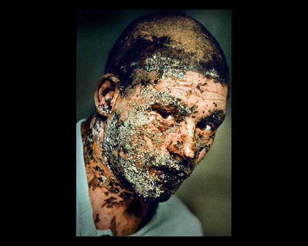 Burnt by a grenade. Karte Seh Hospital in Kabul. Photo by Paul Hansen